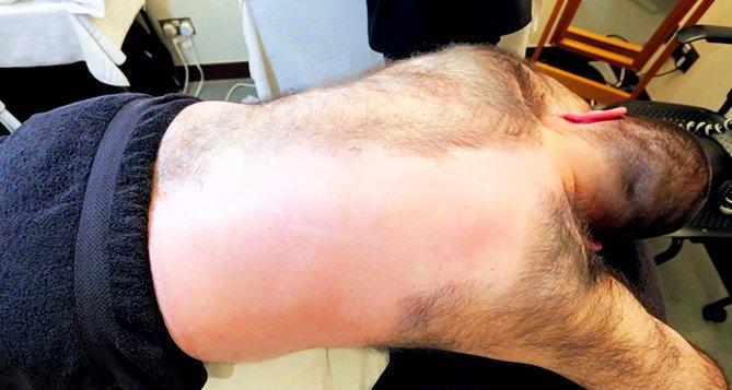 Back Hair on Man